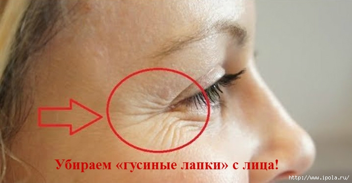 "alt=""Убираем «гусиные лапки» с лица!""/2835299_Ybiraem_gysinie_lapki_s_lica (700x364, 140Kb)"