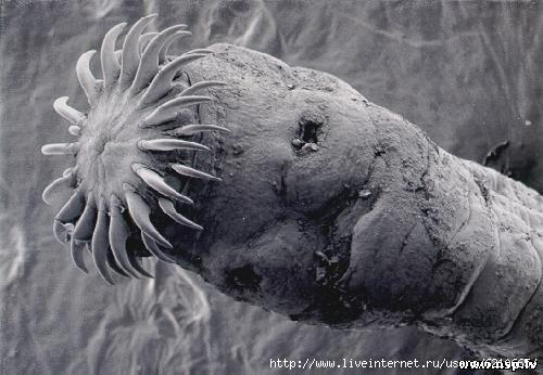 убивают ли антибиотики паразитов в теле, способы заражения паразитами, как дезинфицировать дом от глистов, кашель от глистов у человека, лекарства против глистов у человека, от глистов для детей на травах, цвинтарное семя от глистов купить, что можно купить в аптеки от паразитов, от чего часто глисты, репа от паразитов,