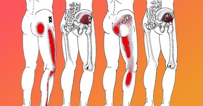 Если у тебя воспаление седалищного нерва, воспользуйся ЭТИМ средством для его лечения! (700x365, 69Kb)