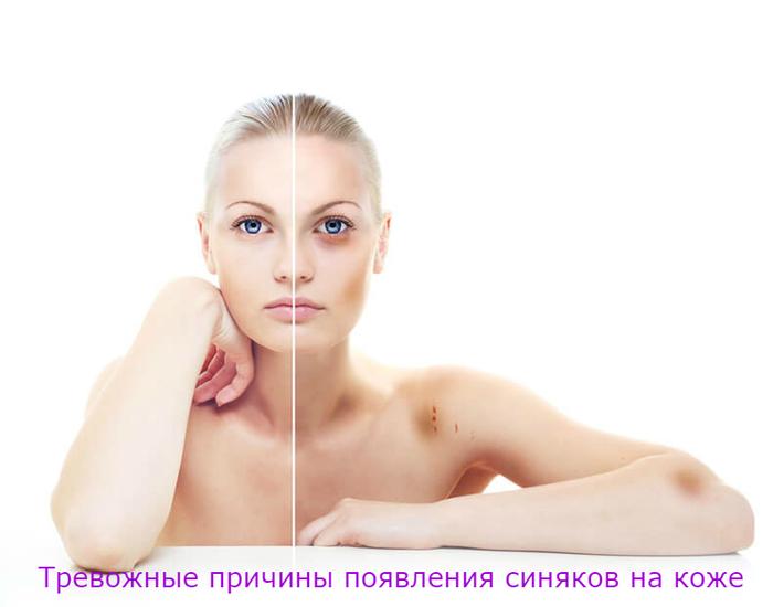 """alt=""""Тревожные причины появления синяков на коже""""/2835299__3_ (700x550, 157Kb)"""