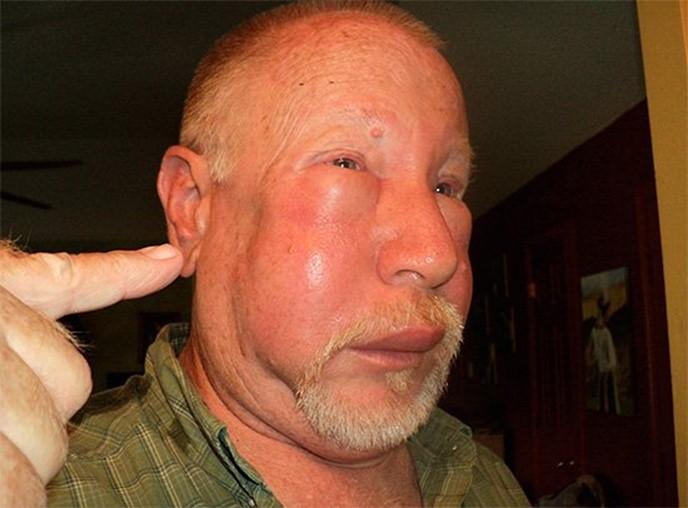 Опухоль при укусе насекомого и как ее правильно снять