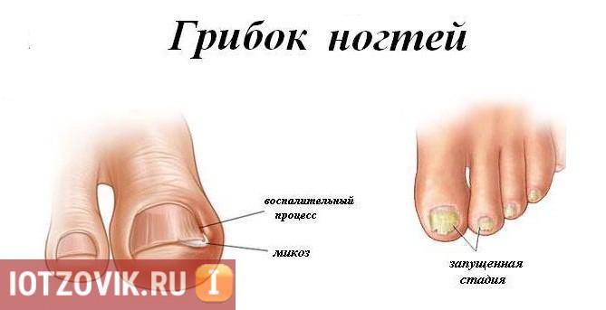 Микоз на ногтях больших пальцев ног