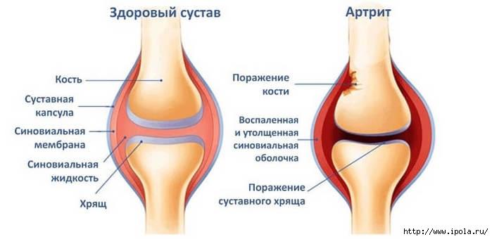 Афоризмы суставы ортопедическая обувь для разгрузки коленного сустава