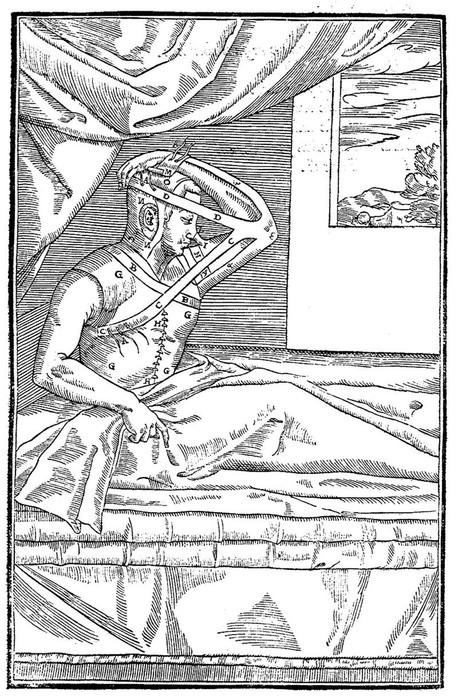 История «путешествия» сифилиса в Европу