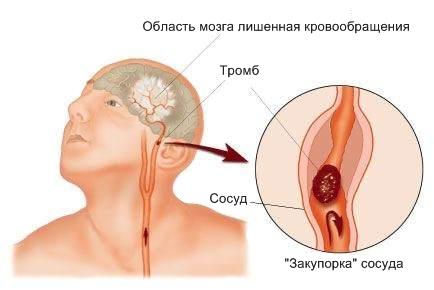 5284814_1avidyincultov (434x290, 42Kb)
