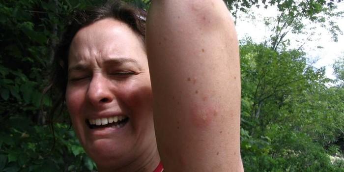 Почему комары выбирают именно вас