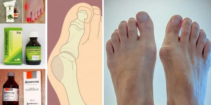 Отек большого пальца на ноге как лечить в домашних условиях
