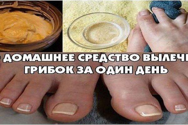 Как лечить грибок между пальцами ног йодом