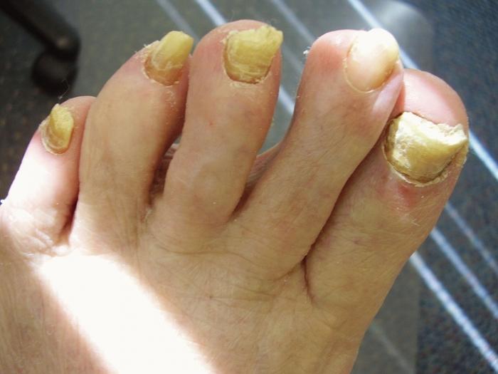 Как вывести грибок на ногтях уксусом