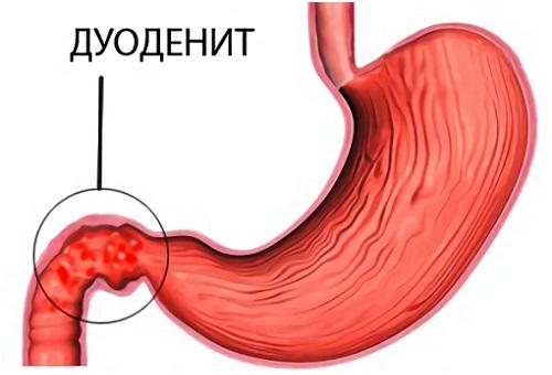 Как лечить прополисом полипы в желудке