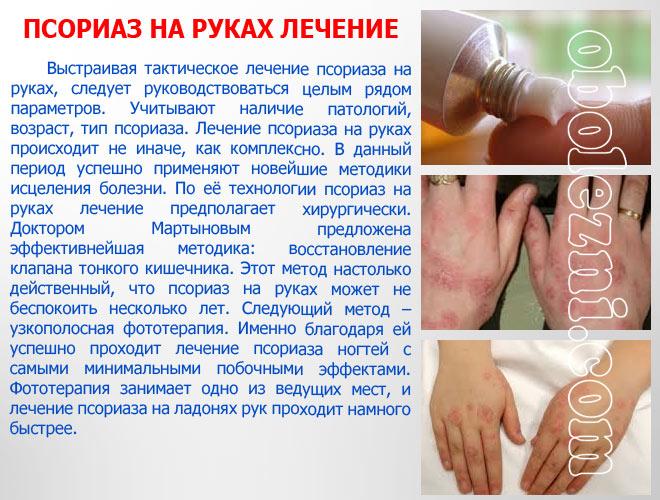 Психосоматическое Лечение Псориаза