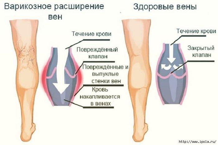 "alt=""Упражнения при варикозном расширении вен""/2835299_Yprajneniya_pri_varikoznom_rasshirenii_ven_1_ (700x466, 109Kb)"