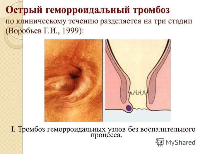 Складка кожи на анальном отверстии сначала