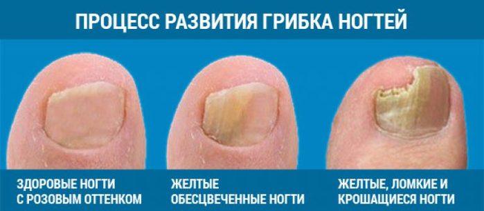 Грибок ногтей можно лечить яблочным уксусом