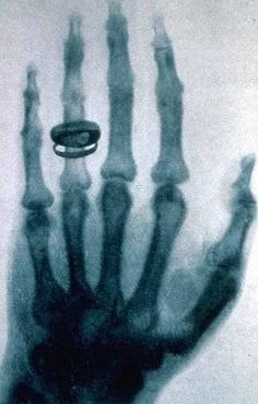 Снимок руки Альберта фон Кёлликера, сделанный Рентгеном 23 января 1896 год (236x369, 38Kb)