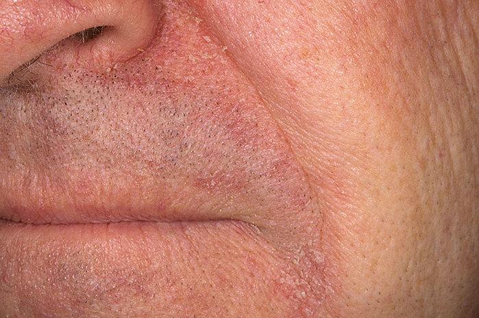 Атопический дерматит себорейная форма