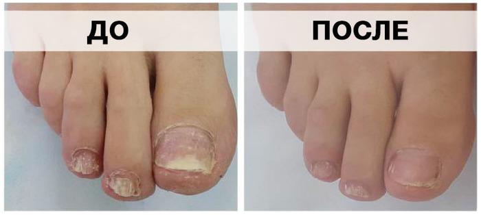 Советы доктора Мясникова от грибка ногтей