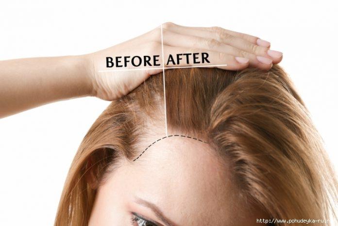 Секретная формула для магической терапии от потери волос!/3925073_Womanbeforeandafterhairlosstreatmentonwhitebackground696x465 (696x465, 110Kb)
