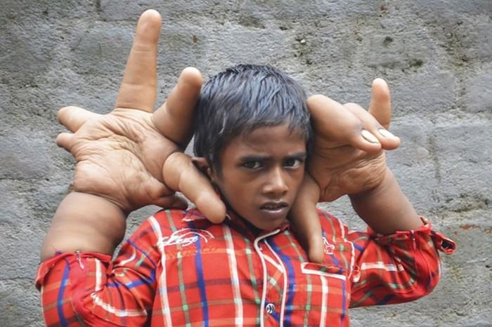 10 самых странных людей планеты. Их потрясающие фотографии и невероятные истории удивили весь мир!