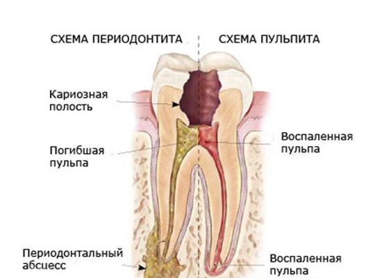 1259869_pulsiruyushchaya_bol_v_zube_pod_plomboy (553x400, 104Kb)