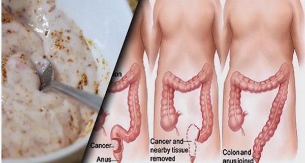Выведет из толстой кишки килограммы токсинов средство всего из двух ингредиентов