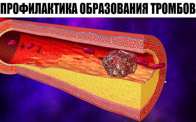 Profilaktika_obrazovaniya_trombov
