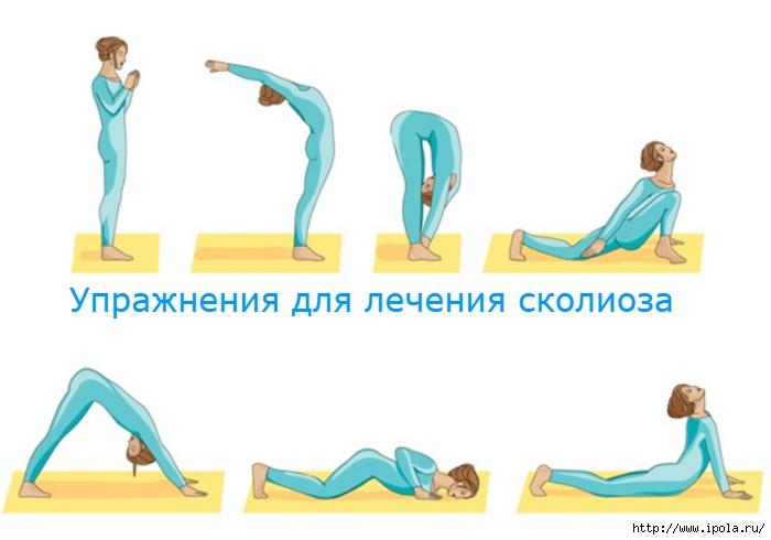"""alt=""""Упражнения для лечения сколиоза""""/2835299__3_ (700x490, 114Kb)"""