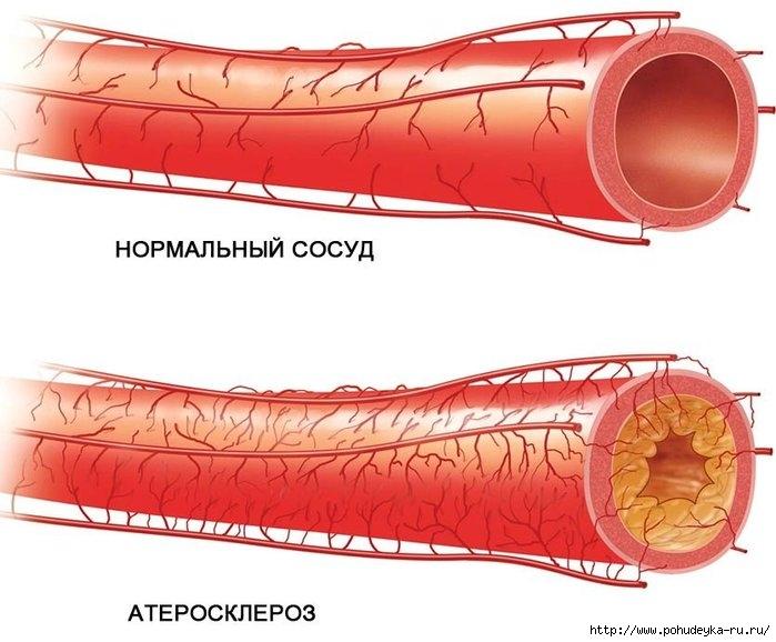 3925073_aterosklerozsosudov (700x578, 184Kb)