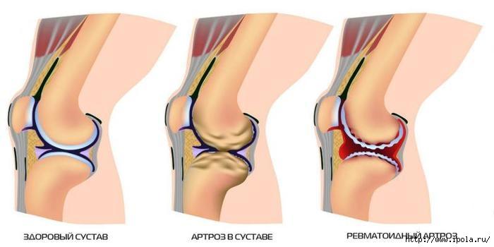 Народные рецепты артроза коленного сустава болят суставы к какому врачу надо идти