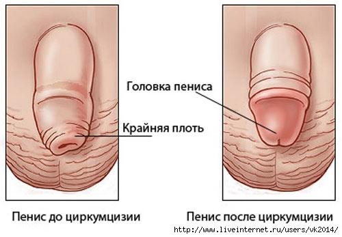 Фимозин