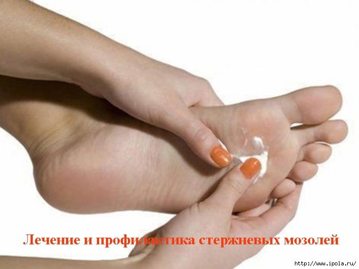 """alt=""""������� � ������������ ���������� �������""""/2835299_Lechenie_i_profilaktika_sterjnevih_mozolei (700x525, 158Kb)"""