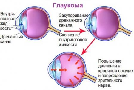 Глаукома (449x300, 22Kb)