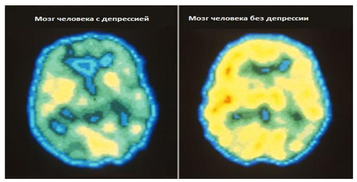 мозг (700x357, 195Kb)