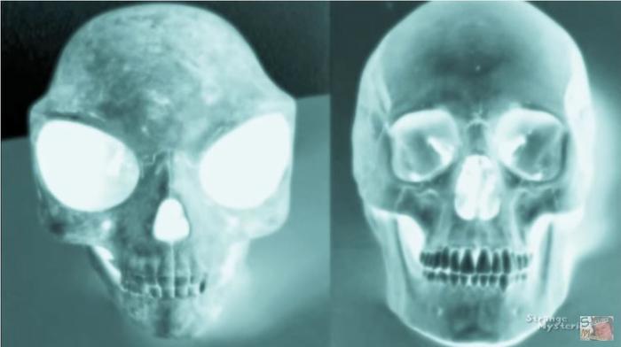 череп 3 (700x392, 143Kb)
