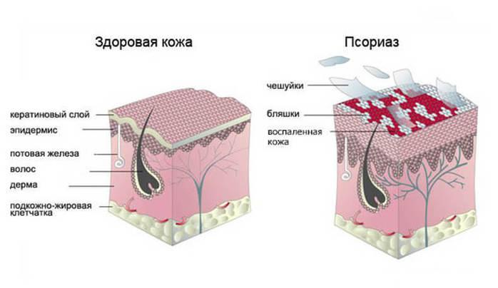 Псориаз — не заболевание кожи! (700x404, 31Kb)