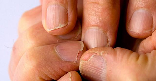 Как выглядят здоровые ногти