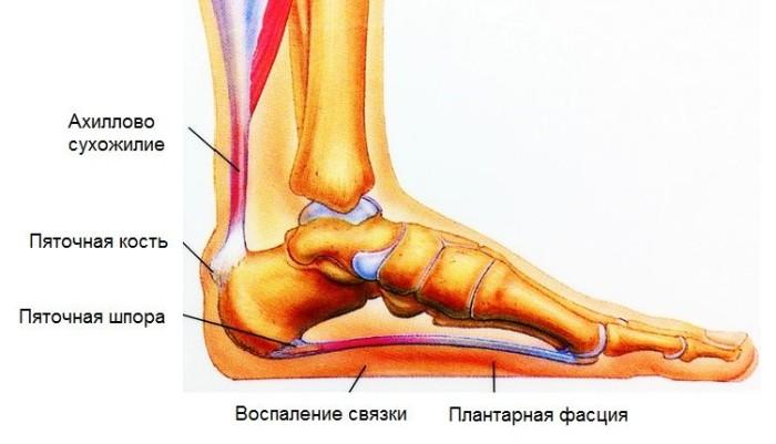 bursit_pyatki_1-700x401 (700x401, 47Kb)