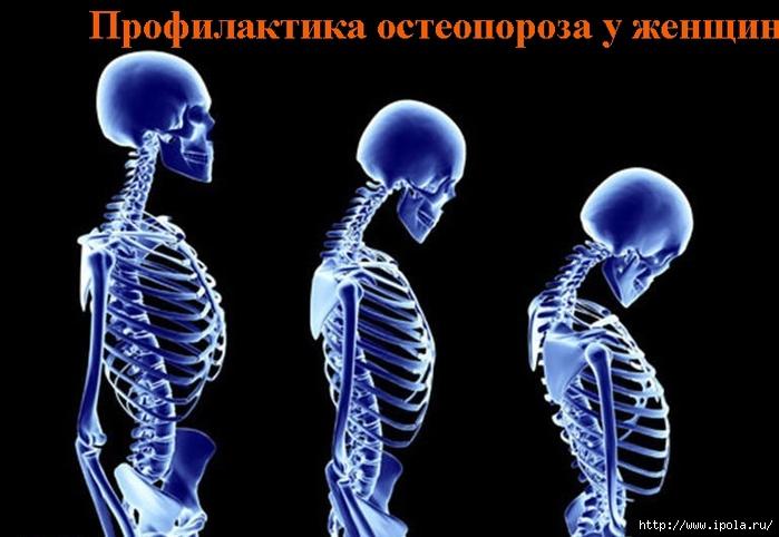 2835299_Profilaktika_osteoporoza_y_jenshin (700x482, 173Kb)