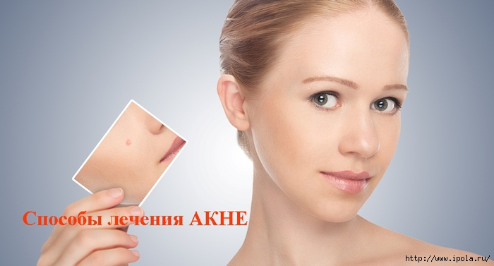 """alt=""""Способы лечения АКНЕ""""/2835299_Sposobi_lecheniya_AKNE (700x377, 133Kb)"""