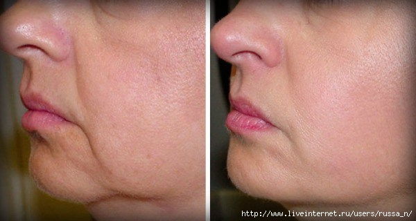 no-wrinkles-sagging-skin-face-2-ingredients (600x320, 97Kb)
