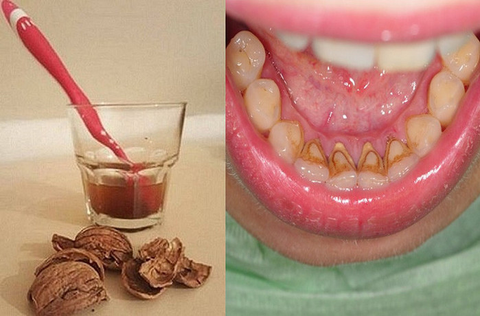 Чем почистить камень на зубах в домашних условиях 213