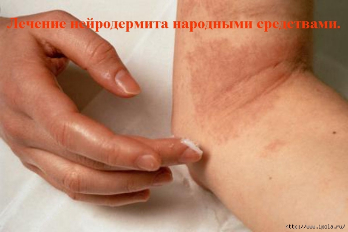 "alt=""Лечение нейродермита народными средствами.""/2835299_Lechenie_neirodermita_narodnimi_sredstvami_ (700x466, 170Kb)"