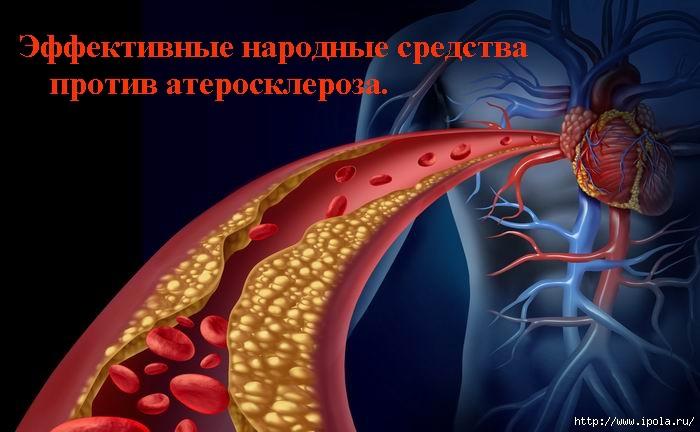 """alt=""""Эффективные народные средства против атеросклероза. Часть 3""""/2835299__5_ (700x432, 159Kb)"""