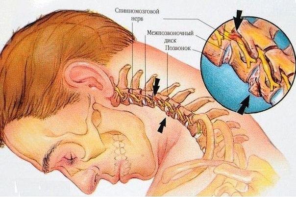упражнения против шейного остеохондроза/1259869_nbnuncTk2c (604x402, 75Kb)