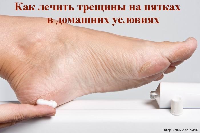"""alt=""""Как лечить трещины на пятках в домашних условиях?""""/2835299_ (700x466, 142Kb)"""