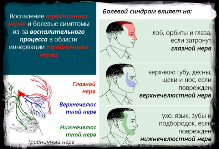 """alt=""""Воспаление тройничного нерва симптомы, лечение народными средствами""""/2835299_zagryjennoe3 (700x478, 311Kb)"""