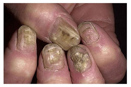 Грибок ногтей в запущенной стадии