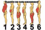Типы ожирения как похудеть