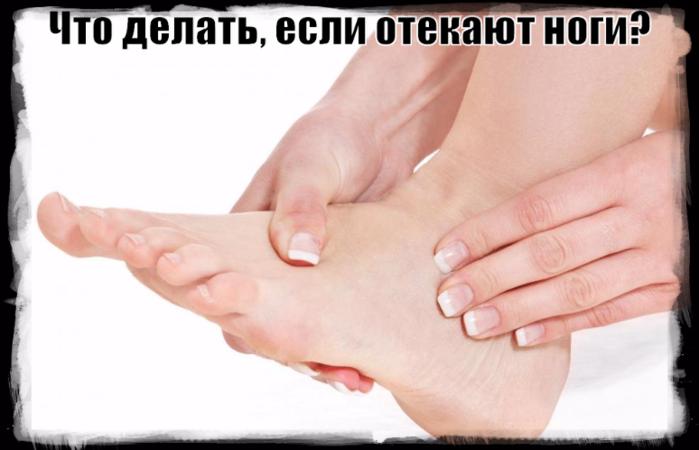 """alt=""""Что делать, если отекают ноги?""""/2835299__1_ (700x450, 295Kb)"""