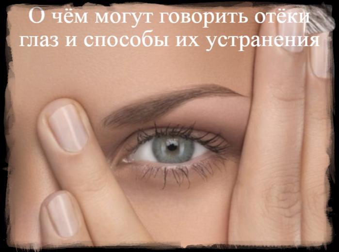 """alt=""""О чём могут говорить отёки глаз и способы их устранения""""/2835299_O_chyom_mogyt_govorit_otyoki_glaz_i_sposobi_ih_ystraneniya (700x520, 380Kb)"""